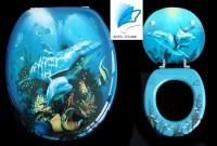 WC Sitz Delphin mit Absenkautomatik
